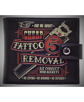 Cartera Tattoo Removal