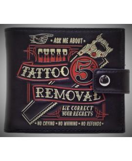 Cartera Tattoo Removal